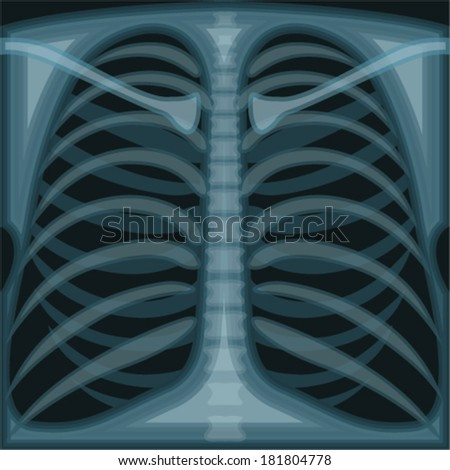 Lungs X Ray - stock vector