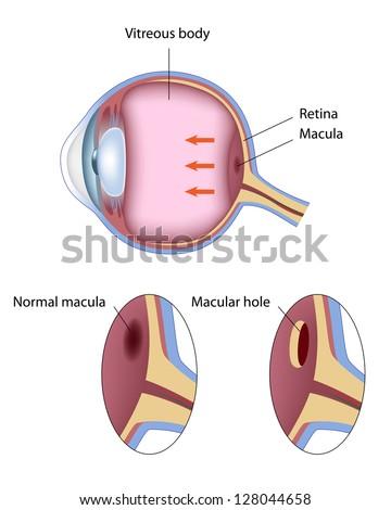 Macular hole - stock vector