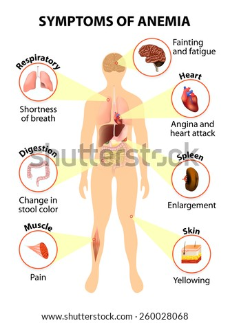 Main sign and symptoms that may appear in anemia. organs on silhouette man - stock vector