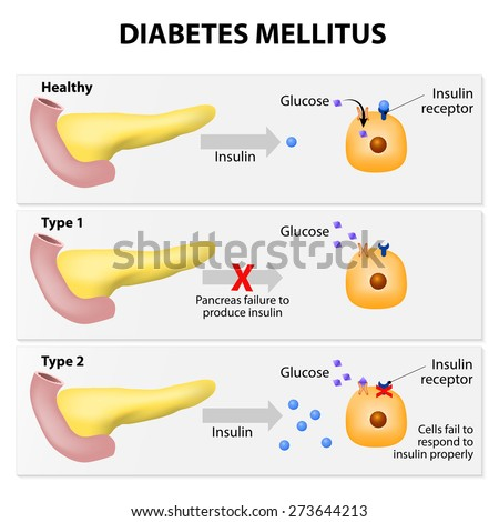 Main Types Diabetes Mellitus Either Pancreas Stock Vector (Royalty ...