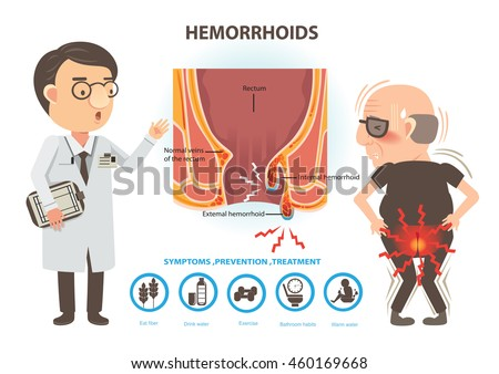 Anus man ache of hemorrhoids and doctors to talk to patients diagram the anal anatomy voltagebd Gallery