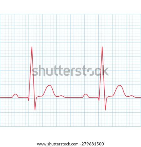 Medical electrocardiogram - ECG on grid paper, graph of heart rhythm, 2d illustration, vector, eps 8 - stock vector