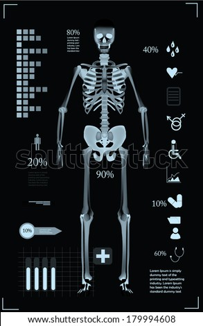 Medical infographic template in X Ray style - stock vector