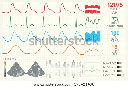 Medical monitor with data set. Possible professional use. Vector illustration - stock vector