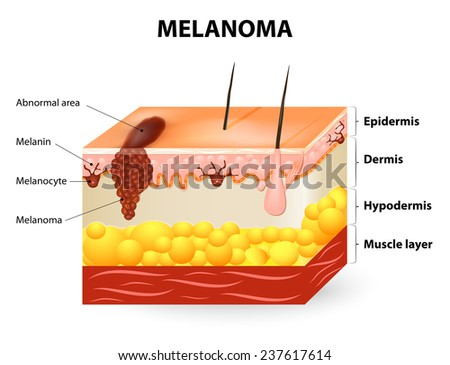 Melanoma or skin cancer. This rare type of skin cancer originates from melanocytes. layers of the human skin. - stock vector