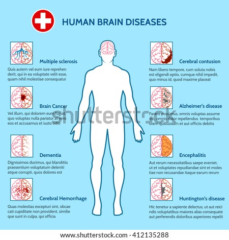 Mental Health and human brain diseases medical infographics vector illustration - stock vector