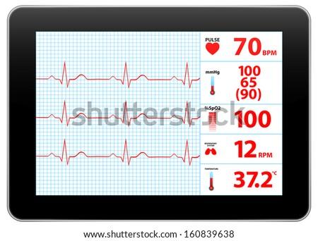 Modern Electrocardiogram Monitor Device Display Similar To iPad - stock vector