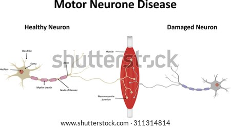 Motor Neurone Stock Photos Images Pictures Shutterstock