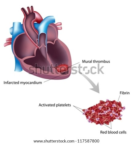 The endocardium stock images royalty free images for Atrial mural thrombus