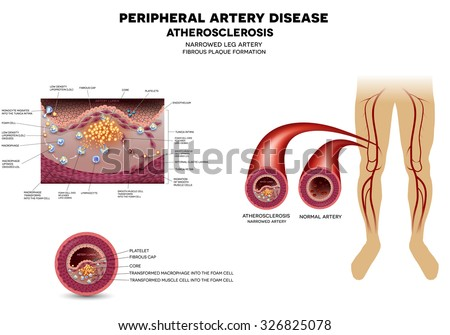 Narrowed leg artery by the atherosclerosis, plaque in the inner surface.