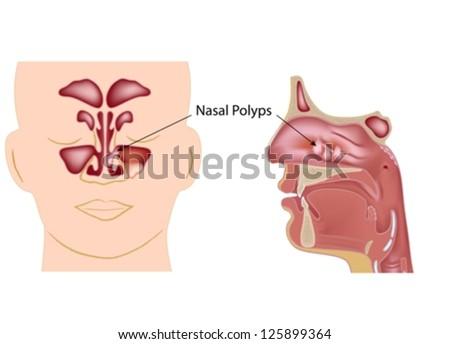 Nasal polyps - stock vector
