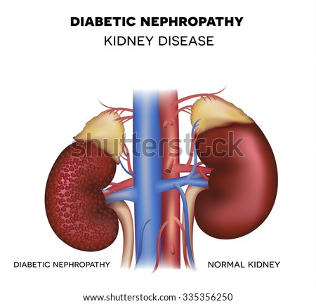 Nephropathy, kidney disease caused by Diabetes