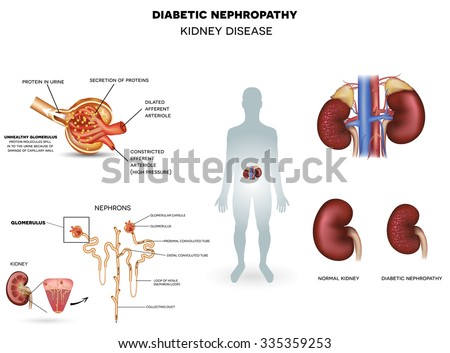 Nephropathy, kidney disease caused by Diabetes detailded poster.