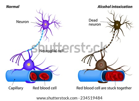 nerve damage caused by heavy drinking. Alcohol dissolves the protective layer of erythrocytes and the RBCs begin to adhere to each other. oxygen to the neuron is no longer supplied. Neuron dies - stock vector