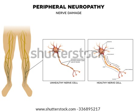 Neuropathy that is the damage of peripheral nerves that causes pain and loss of sensation in the extremities.