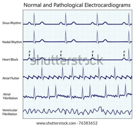 Normal and pathological ecg collection - stock vector