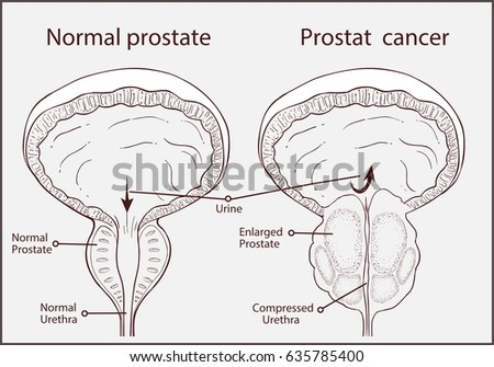 prostate stock images  royalty