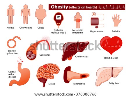 The Healthcare Costs of Obesity