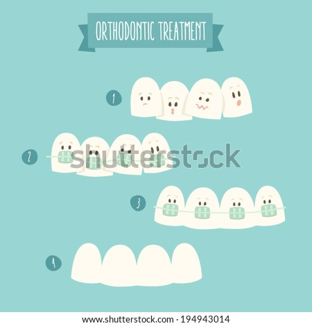 orthodontic treatment (tooth braces) vector illustration, flat design  - stock vector