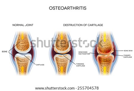 Osteoarthritis, destruction of cartilage. Healthy joint and unhealthy joint anatomy. - stock vector