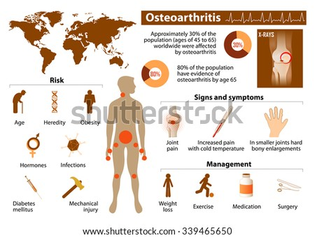 Osteoarthritis. Medical Infographic set with icons and other elements. medical symbols for design - stock vector