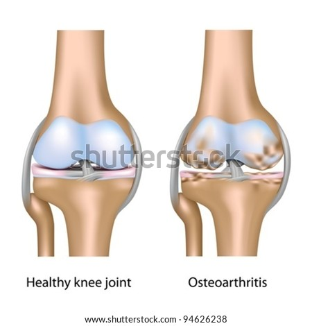 Osteoarthritis of knee joint - stock vector