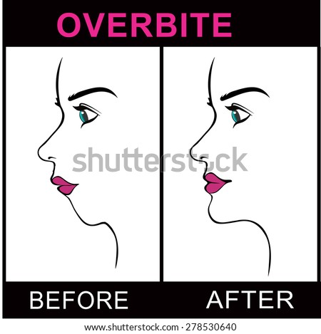 Overbite Jaw Surgery - stock vector