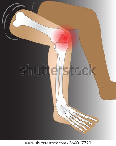 painfull knee joint catched, illustration vector - stock vector