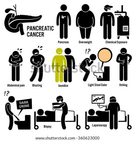 Pancreatic Pancreas Cancer Symptoms Causes Risk Factors Diagnosis Stick Figure Pictogram Icons - stock vector