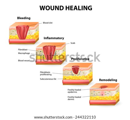 Phases of the wound healing process. Hemostasis, Inflammatory, Proliferative, Maturation and remodeling phase - stock vector