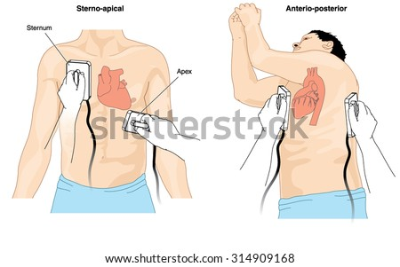 Placement of defibrillator electrode paddles to perform cardioversion on a patient with cardiac arrhythmia - stock vector