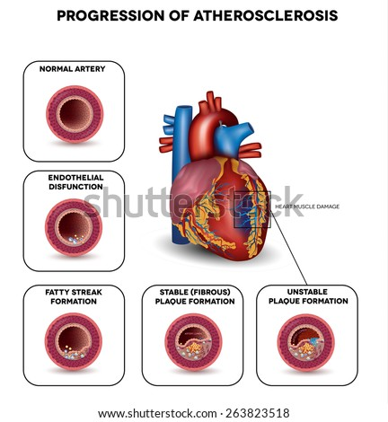 Progression of Atherosclerosis till heart attack. Heart muscle damage due to blood clot. Very detailed illustration of fatty streak formation, white blood cells infiltration, blood clot formation etc. - stock vector
