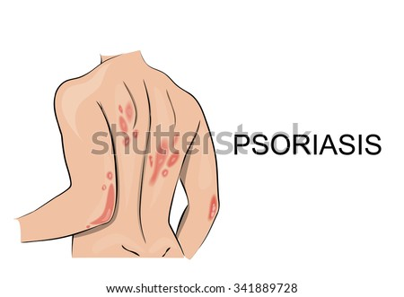psoriatic rash. Dermatology. Allergic reaction, redness, itching, peeling skin - stock vector