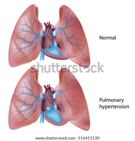 Pulmonary hypertension - stock vector