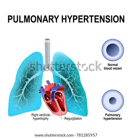 Pulmonary Hypertension Increased Blood Pressure Within Stock Vector