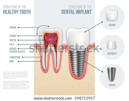 Implant Stock Images, Royalty-Free Images & Vectors | Shutterstock