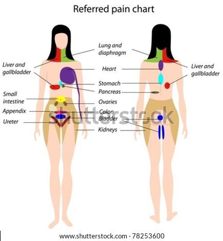 Referred pain chart - stock vector