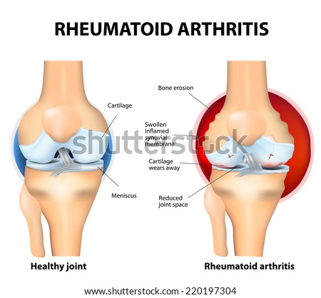 Rheumatoid Arthritis (RA)is an inflammatory type of arthritis that usually affects knees. the auto immune disease. The body's immune system mistakenly attacks healthy tissue. - stock vector