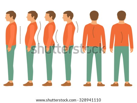 scoliosis, lordosis spine disease, back body posture defect - stock vector
