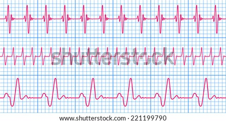 Seamless pattern of the ekg cardiograms chart - stock vector