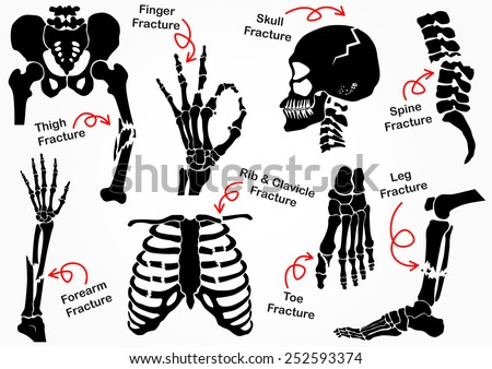 Set Bone Fracture Icon ( Pelvic , Hip , Thigh ( femur ) , Hand , Wrist , Finger , Skull , Face , Vertebra , Arm , Elbow , Thorax , Foot , Heel , Leg ) black & white design ( health care concept ) - stock vector