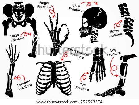 Hip Bone Clipart