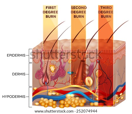 Skin burn classification. First, second and third degree skin burns. Detailed skin anatomy. - stock vector