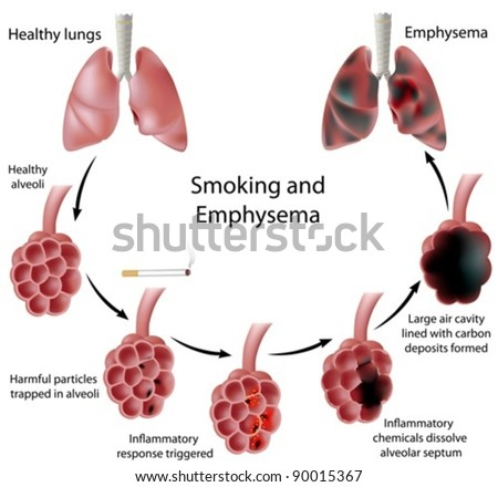Smoking and emphysema - stock vector