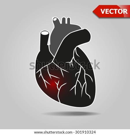Sore heart. Black heart. Disease. The heart injury. - stock vector