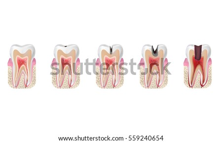 Caries Stock Images, Royalty-Free Images & Vectors | Shutterstock