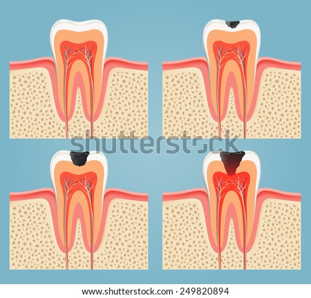stages of tooth decay - stock vector