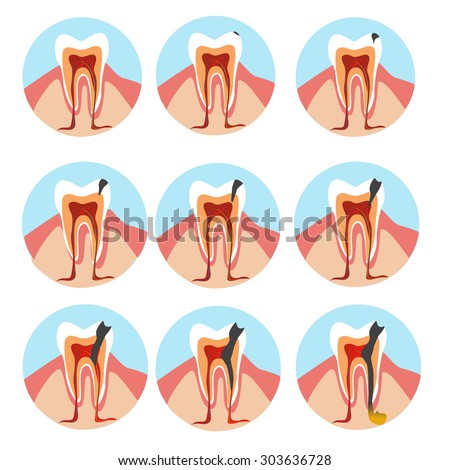 stages of tooth decay illustration.  Development of dental caries illustration.  - stock vector