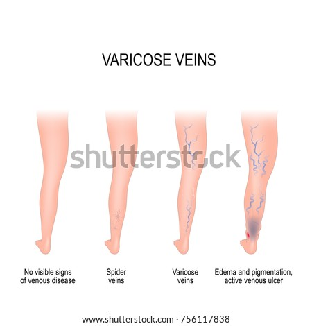 Edema Stock Images, Royalty-Free Images & Vectors ...