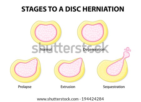 stages to a disc herniation. Normal, Degeneration, Prolapse, Extrusion, Sequestration - stock vector